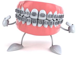 ортодонтия для взрослых